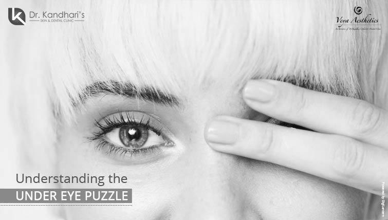 Understanding The Under Eye Puzzle