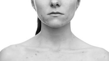 General Skin Problem