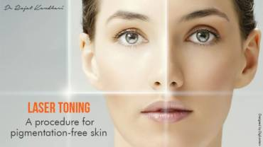 Laser Toning – A procedure for pigmentation-free skin