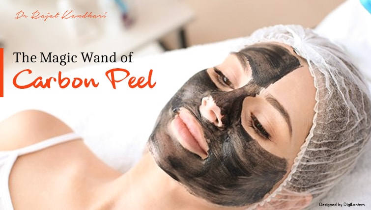 The Magic Wand of Carbon Peel