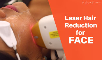 Laser Hair Reduction for Face | Dr. Rajat Kandhari - Consultant Dermatologist