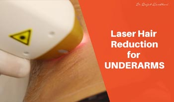 Laser Hair Reduction for Underarms | Dr. Rajat Kandhari - Consultant Dermatologist