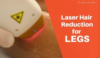 Laser Hair Reduction for Legs | Dr. Rajat Kandhari - Consultant Dermatologist