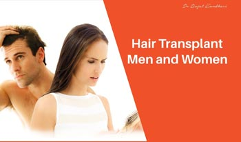 Cover your Baldness with Hair Transplant!