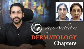 Dermatology Chapters | Dr. Rajat Kandhari - Consultant Dermatologist
